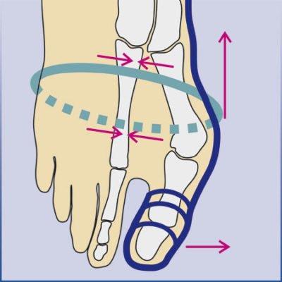 Hallux-Valgus-Bandage, Korrektursocke, arthrolux®, Hallux-Valgus