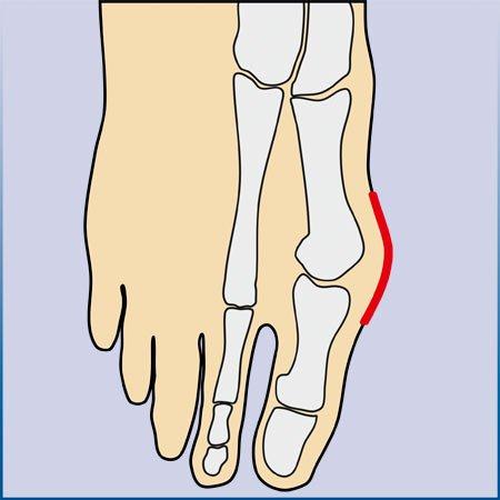 Stadien der Fußfehlstellung, Hallux Valgus, arthrolux® Korrektursocken
