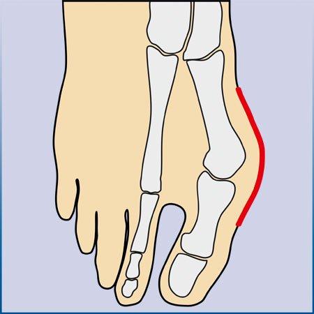 Vorderfußdeformität und Großzehen Fehlstellung, arthrolux® Korrektursocken